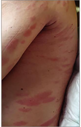 vörös foltok jelentek meg a láb bőrén