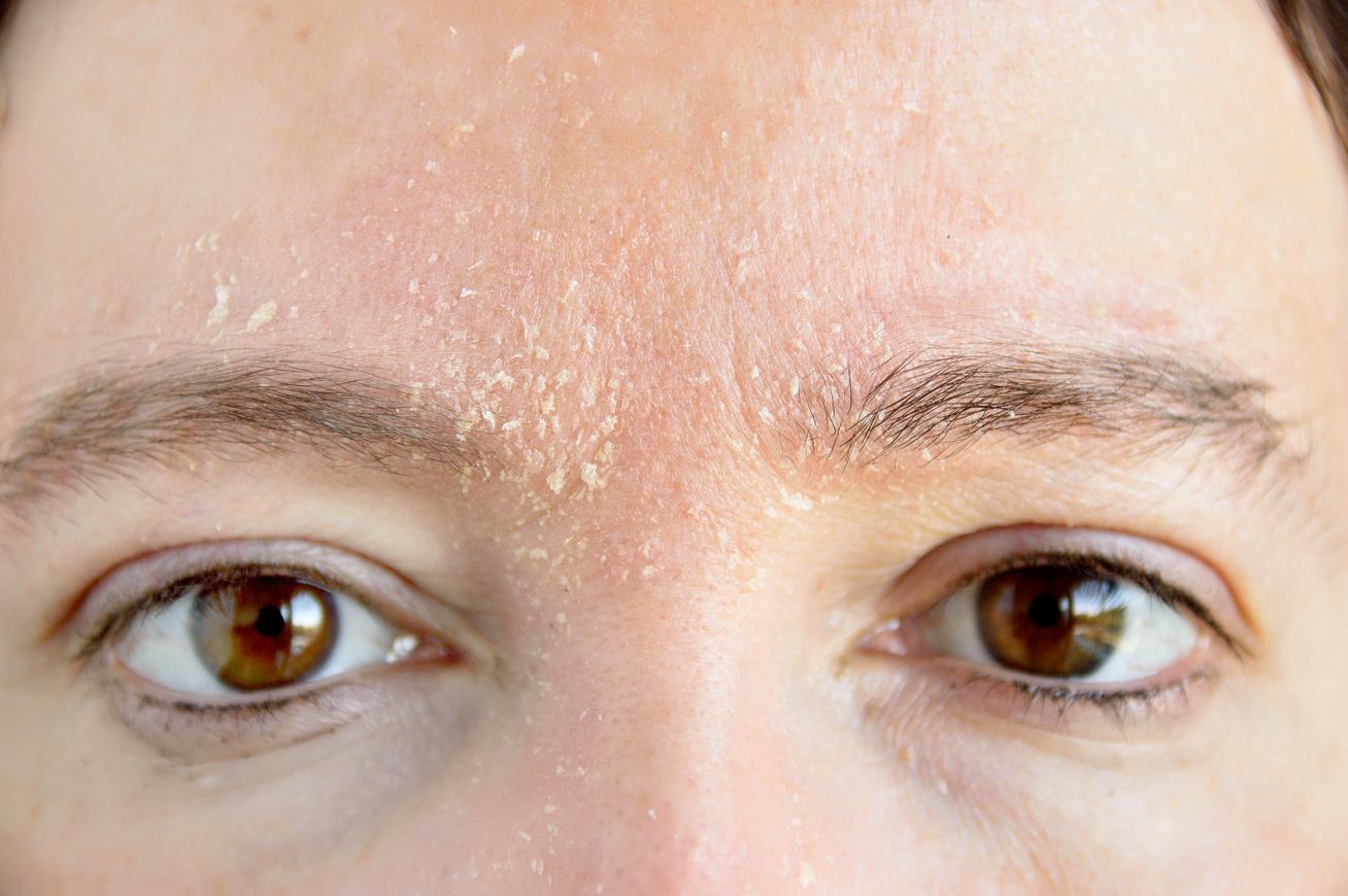 hogyan lehet megszabadulni a fehér foltoktól a pikkelysömör után