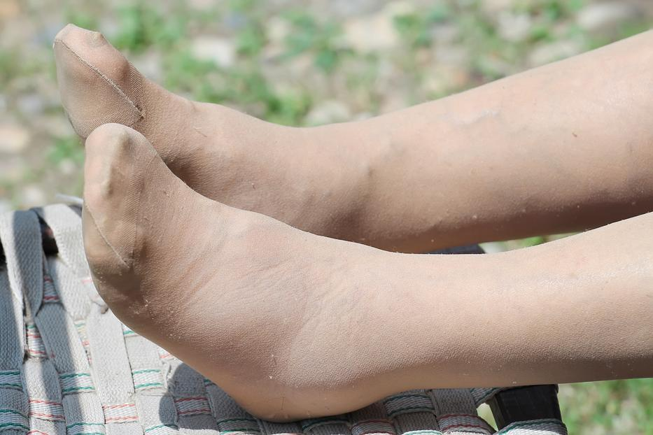 fáj a lábán egy nagy piros folt