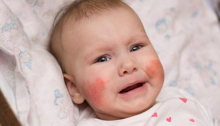 ha irritációként vörös foltok jelennek meg az arcon