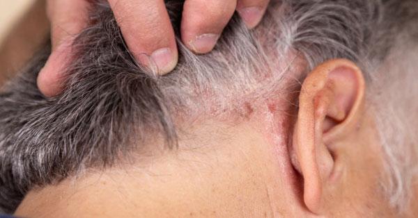 hogyan lehet meggyógyítani a fejbőr pikkelysömörét? a bőrt vörös foltok és kéreg borítja