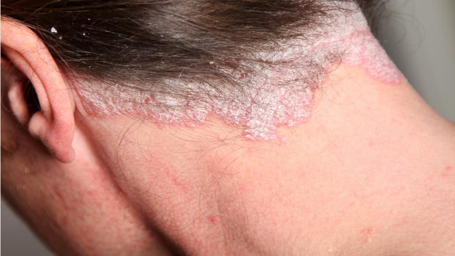gyógyszerek a fej pikkelysömörhöz pikkelysömör kezelése celestodermmal