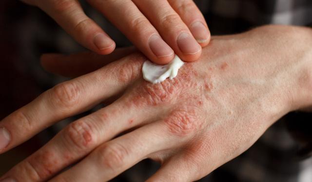 pikkelysömör viszket kezelni hogyan otthoni gygyszer pikkelysömörhöz népi gyógymódokkal