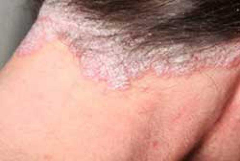 vörös foltok jelennek meg a bőrön és eltűnnek hogyan kell kezelni a gyomor vörös foltját