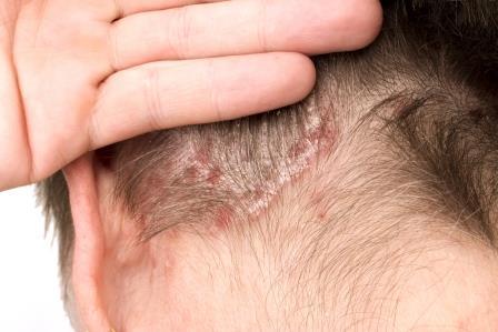 fejbőr pikkelysömör és a bőr kezelése