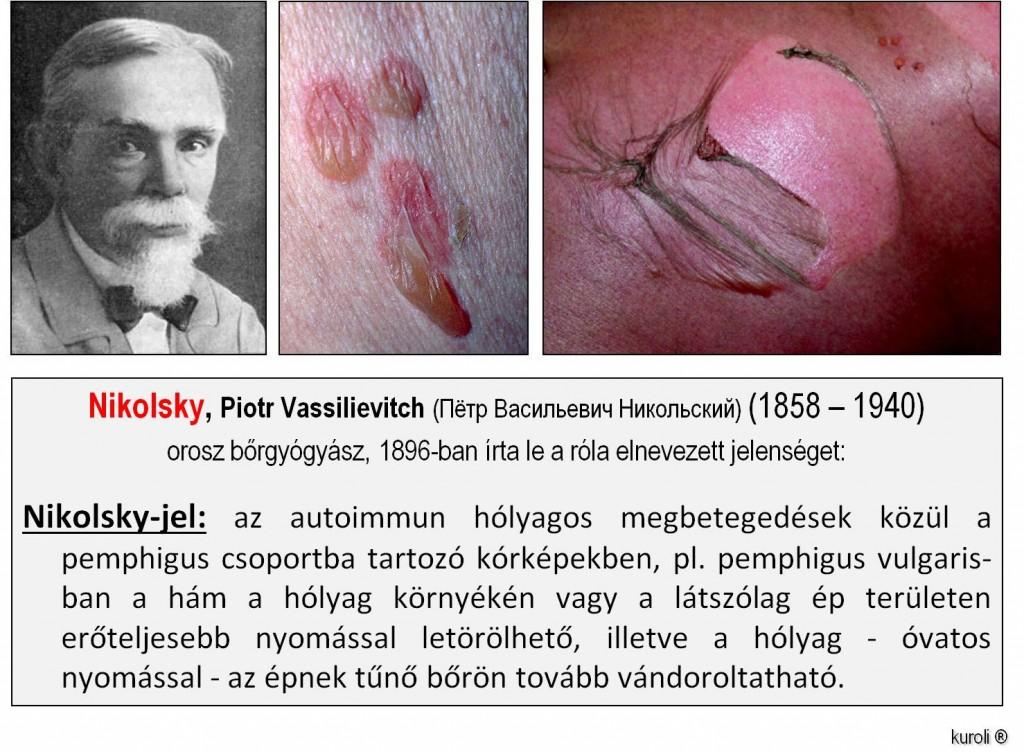 sebek vagy vörös foltok és viszketés jelennek meg a fejbőrön vörös foltokkal borított test hogyan kell kezelni