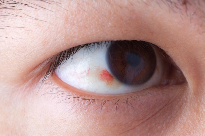 hogyan kell kezelni a szeméremrész vörös foltjait hogyan lehet gyorsan eltávolítani a vörös foltokat az arcon otthon