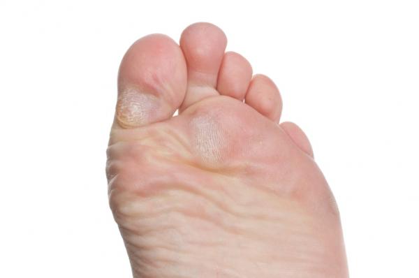 hogyan lehet eltávolítani a vörös foltokat a láb bőrkeményedéséből gyógyszer pikkelysömörhöz importált