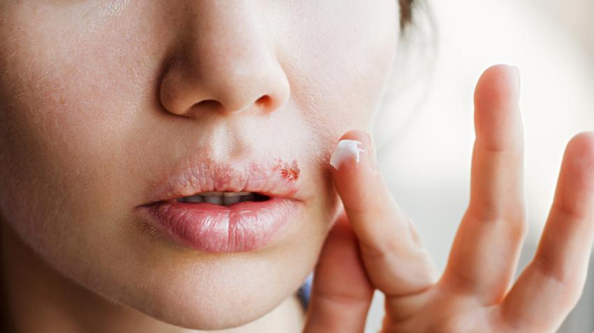 hogyan lehet eltávolítani a vörös foltokat az ajak herpesz után