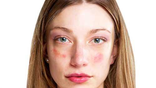 Piros foltok az arcon, a száj körül és az orr