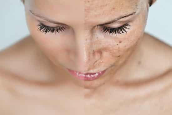 vörös foltok és hámlás a bőrön népi gyógymódok pikkelysömörhöz a lábakon és a karokon