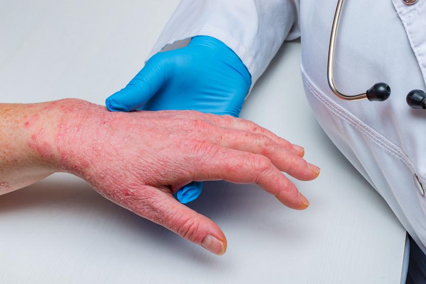 megszabadulni a pikkelysömörtől otthon vörös foltok jelentek meg a gyomorfotón a férfiaknál