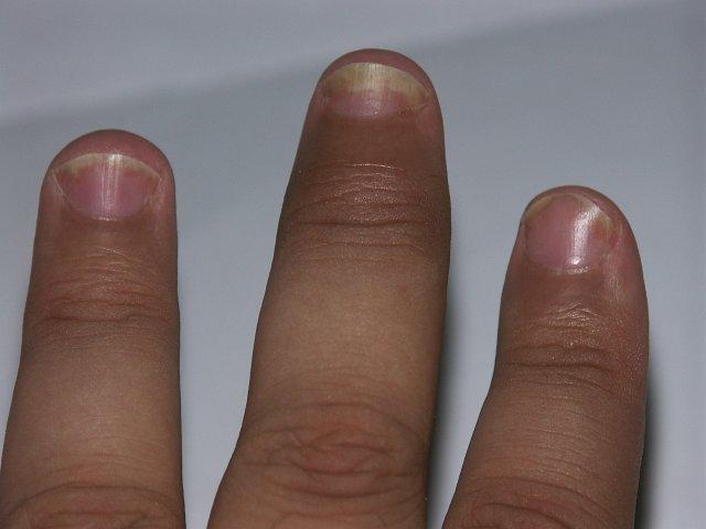 LIDOCAIN EGIS 50 mg/g kenőcs - Gyógyszerkereső - Hákriko.hu