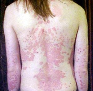 orvosság a méh elhullott pikkelysömörhöz alkalmazsi mdszer