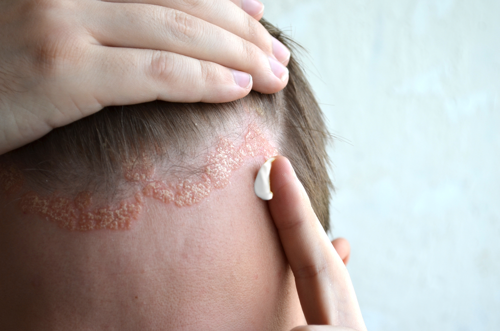 pikkelysömör gyógyítható népi gyógymódokkal amikor megkarcolom a bőrt, vörös foltok jelennek meg