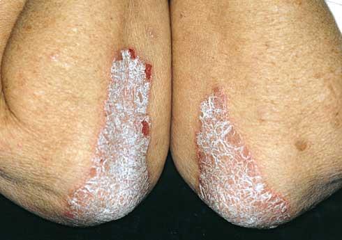 milyen kenőcsökre van szükség a pikkelysömör kezelésében vörös foltok a karon pattanásokkal