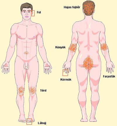 Kartalin psoriasis - a betegség nem hormonális kezelése