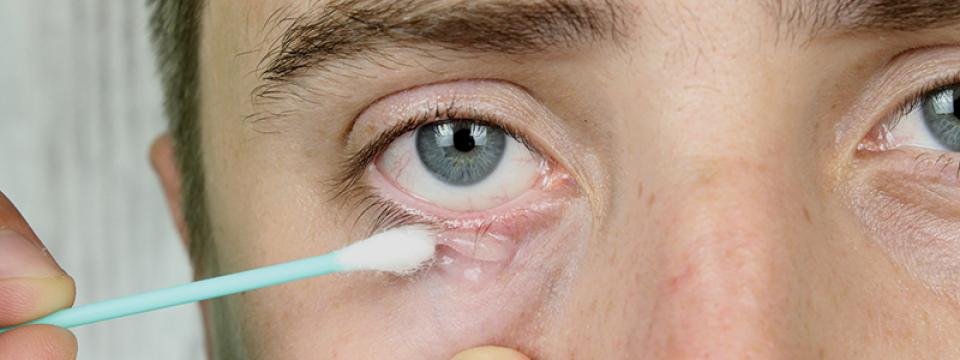 ekcma neurodermatitis pikkelysmr kezels aludni az arcon vörös foltok