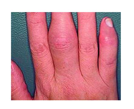 A pikkelysömörrel járó ízületi gyulladás kétoldalúan kezelendő