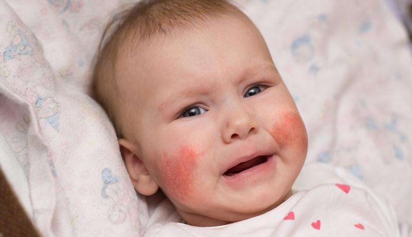 Viszkető, vörös folt arcon