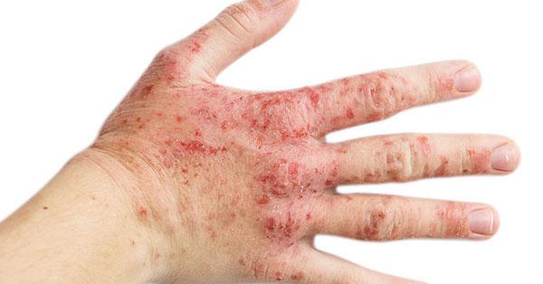 sebek vagy vörös foltok és viszketés jelennek meg a fejbőrön hogyan lehet pikkelysömör gyógyítani