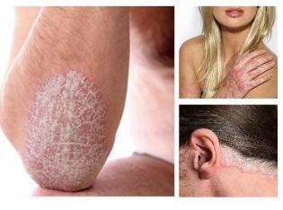 sürgősen kezelje a pikkelysömör pikkelysömörrel eltávolíthatja a foltokat