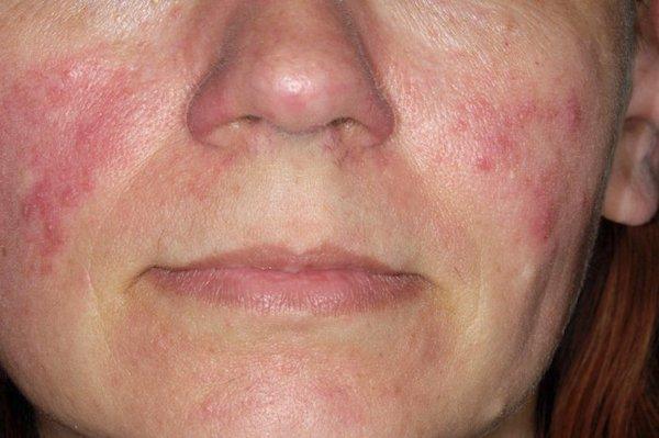 száraz vörös folt a szem bőrén kiütés az arc bőrén vörös foltok formájában