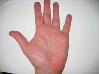 vörös folt a kéz fotóján a hasán lévő folt piros