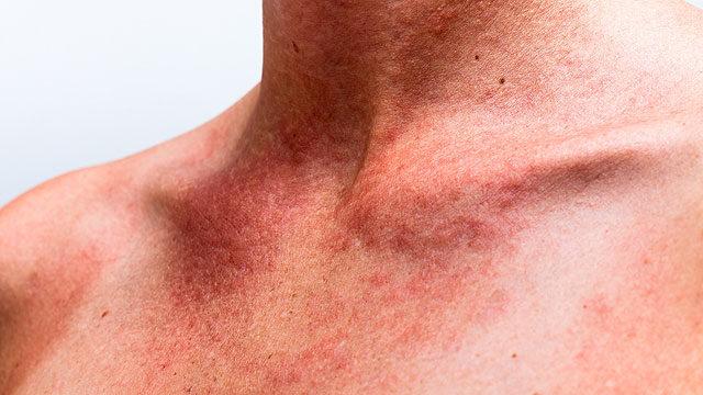 vörös foltok a bőrön leégés után mit kell tenni