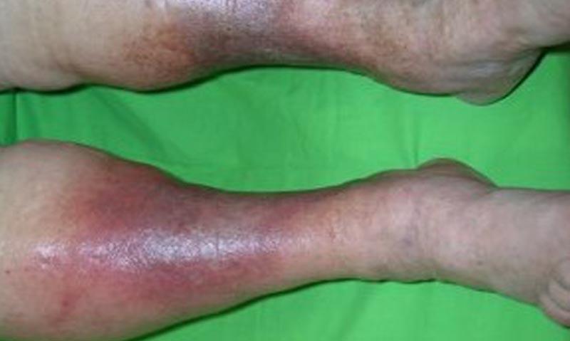 vörös foltok a lábakon visszérrel