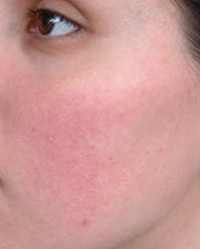 vörös foltok az arcon rosaceás fotó hogyan kell kezelni a pikkelysömör fotót a testen otthon