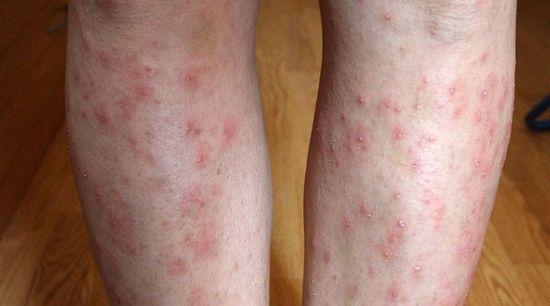 vörös foltok jelentek meg az alsó lábszáron és viszkettek