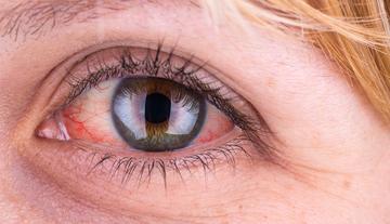 vörös foltok pikkelyesek a szem körül