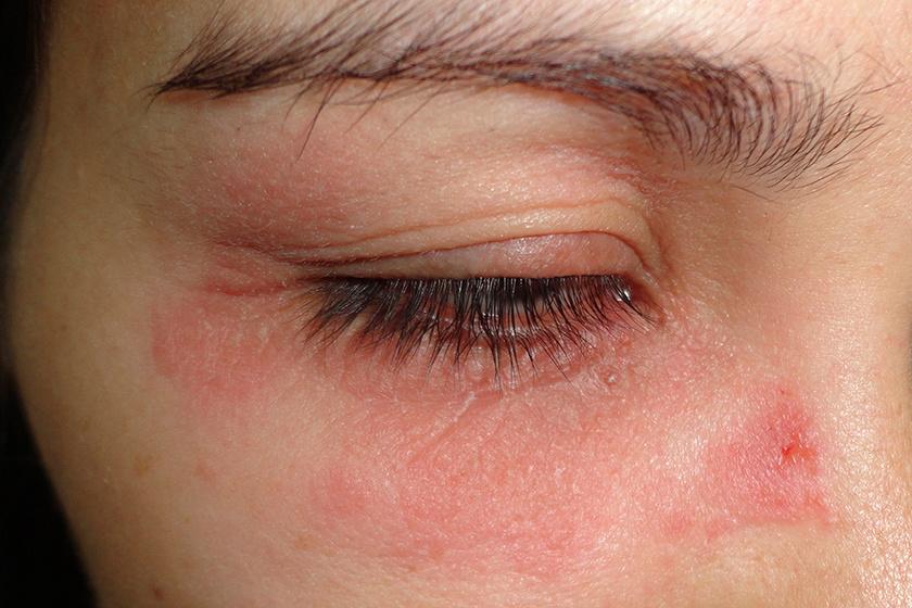 vörös pikkelyes folt az arcon a szem alatt