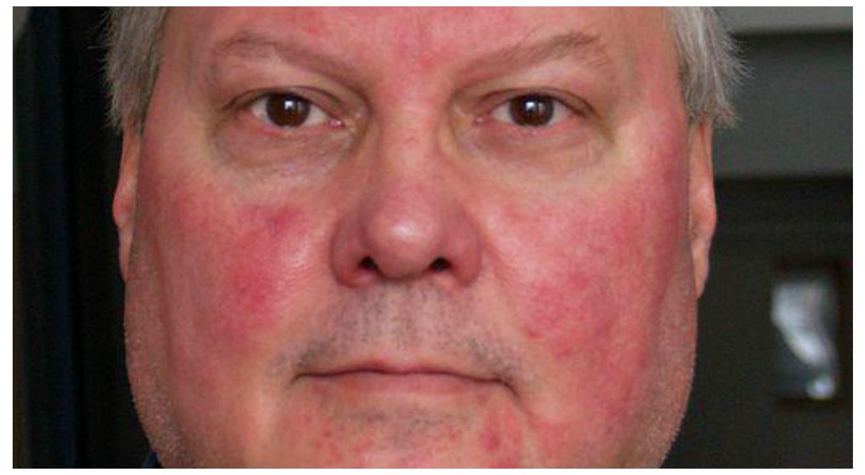 vörös pikkelyes foltok egy felnőtt arcán vörös foltok a fejbőr korpásodásán