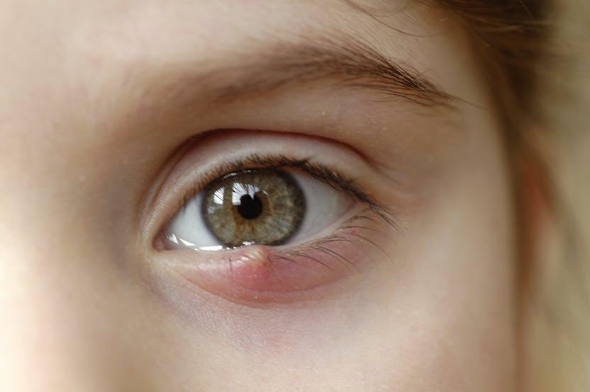 a szemhéjon vörös folt lehúzza mi ez TCS a pikkelysmr kezelsben
