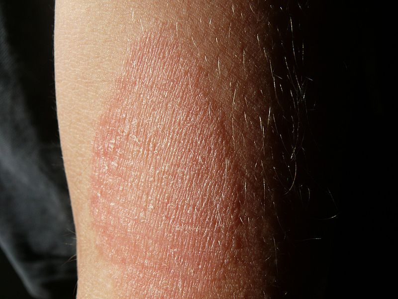 besugárzó ultraibolya kvarc oufk 01 pikkelysömör kezelése pikkelysömör kezelési eljárás