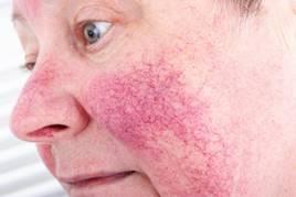 vörös foltok pikkelyesek az orr körül pikkelysömör kannabisz kezelés