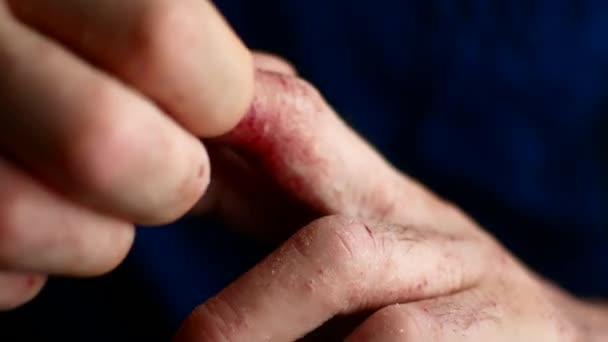 pszoriázis sebek könyök - A legjobb psoriasis krém