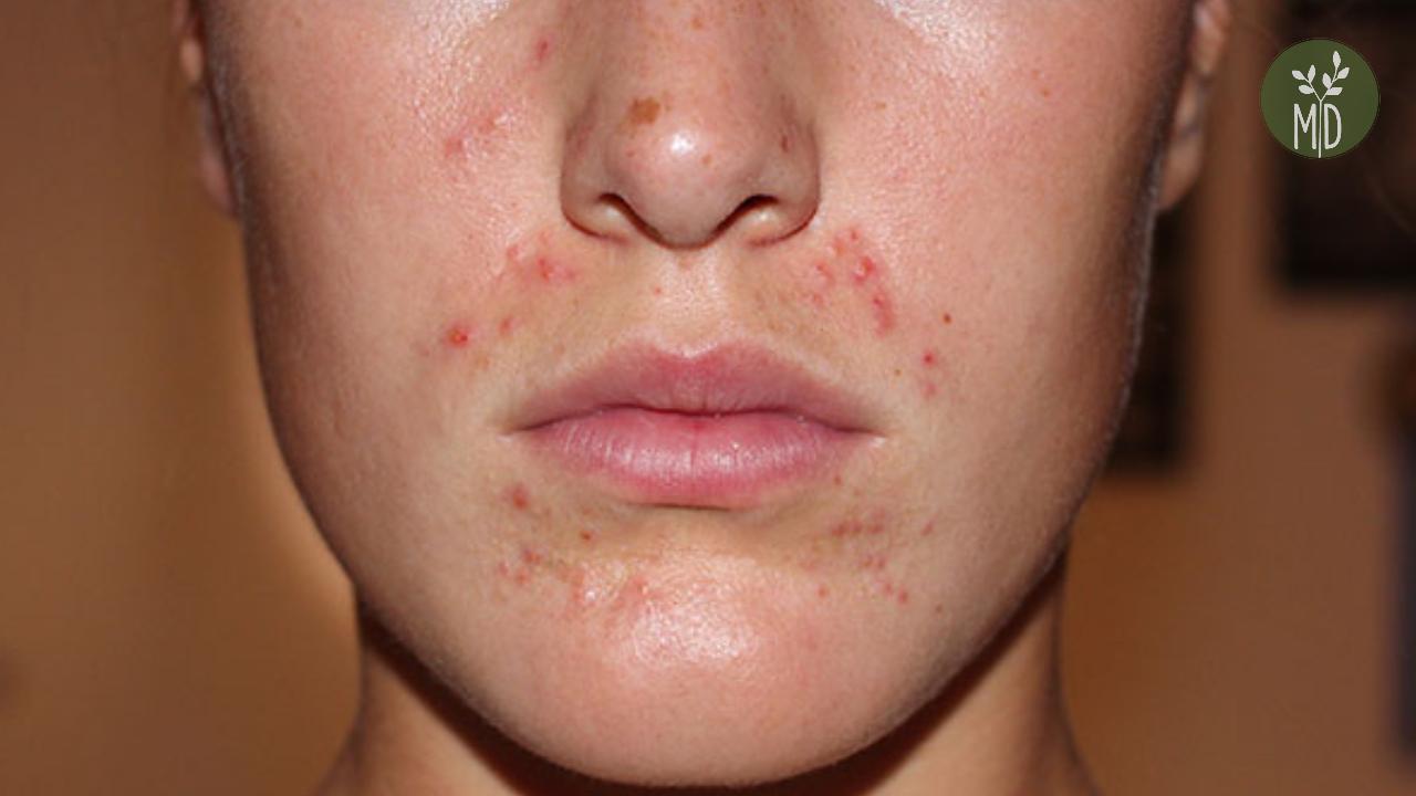 piros foltok pattantak a gyomorra milyen kezektől viszket a bőrön vörös foltok viszketés kezelés