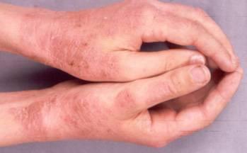 Színes zuzmó - kezelés és megelőzés - Gyógyító betegségek -