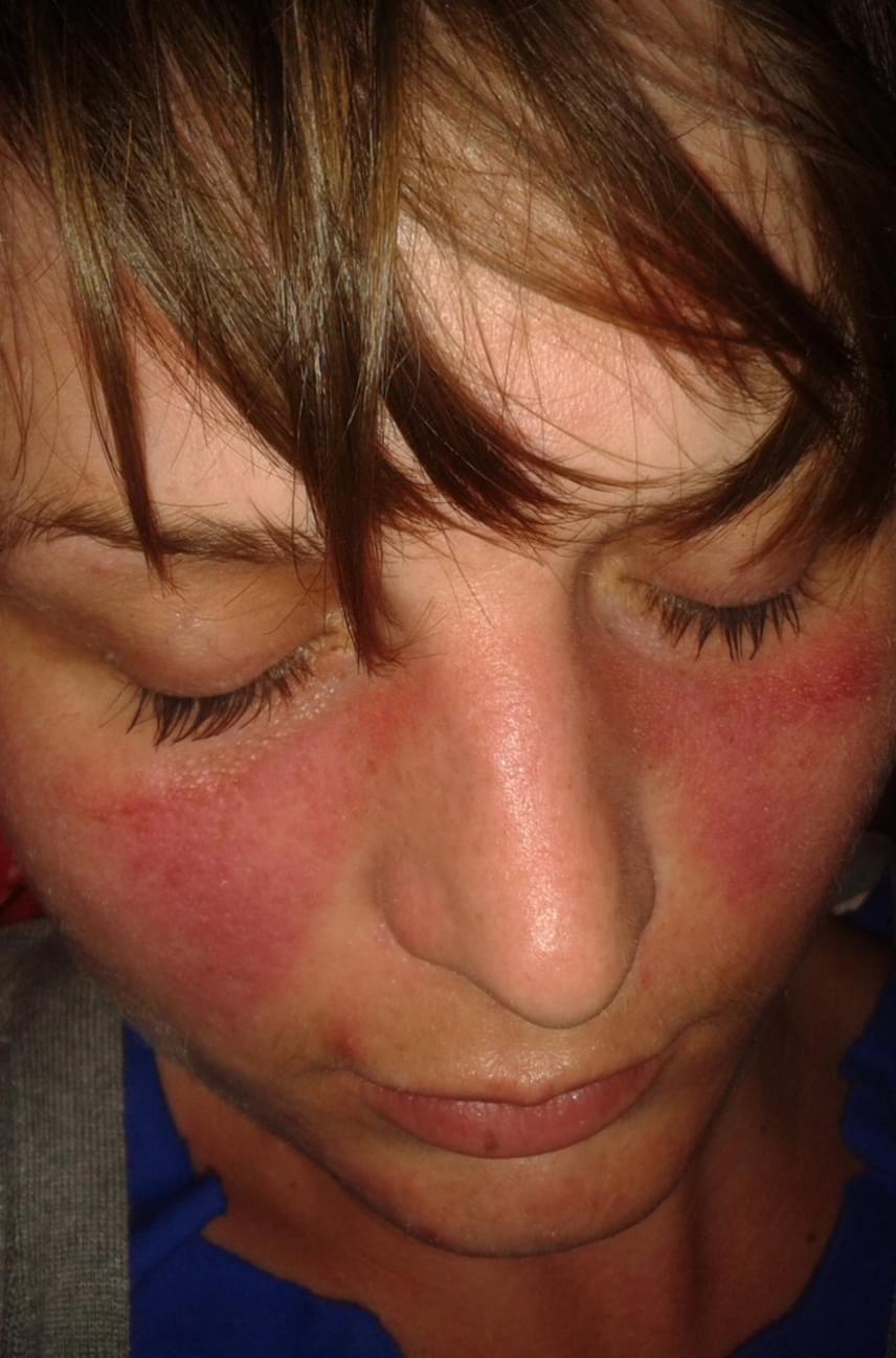 vörös foltok az arc bal oldalán