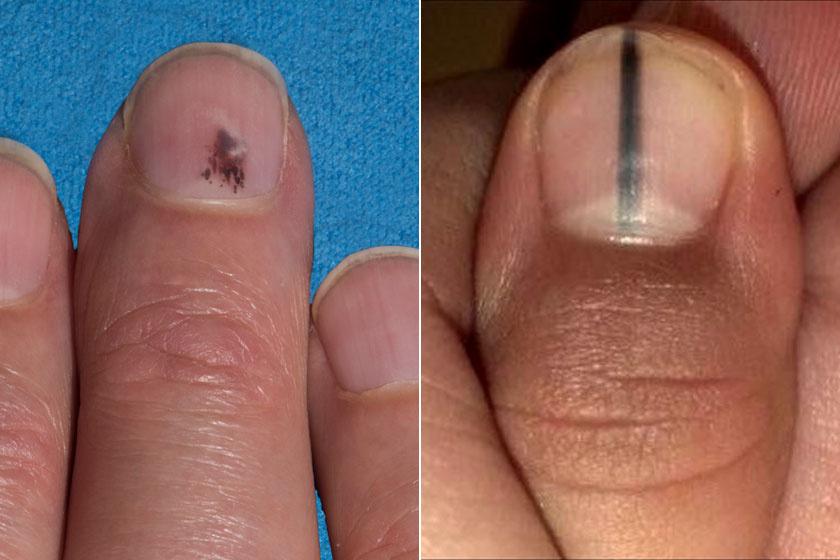 vörös foltok a kezek bőrén kezelés az egész test megég és vörös foltok borítják viszket