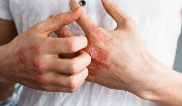 vörös foltok a kezeken az ujjak között magnézia pikkelysömör kezelésére