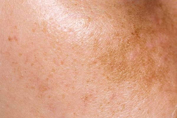 Szimpatika – A fokozott bőrelszíneződések leggyakoribb okai