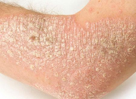 pikkelysömör otthoni kezelés fotó vörös foltok jelentek meg az egész testben viszketés kezelés