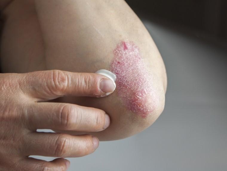 koplalással meggyógyíthatja a pikkelysömöröt