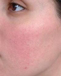 mi okozza a vörös foltok megjelenését az arcon vörös napfoltok a bőrön