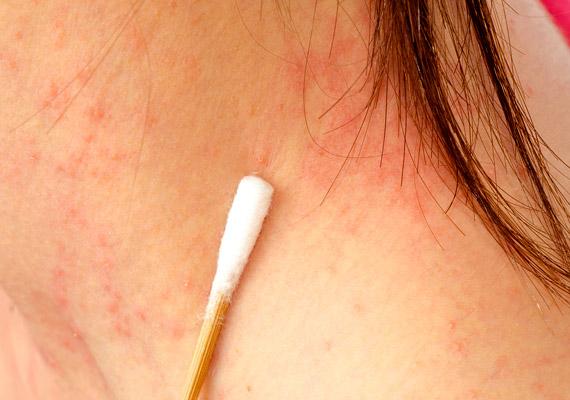 az arcon vörös pikkelyes foltok kezelése