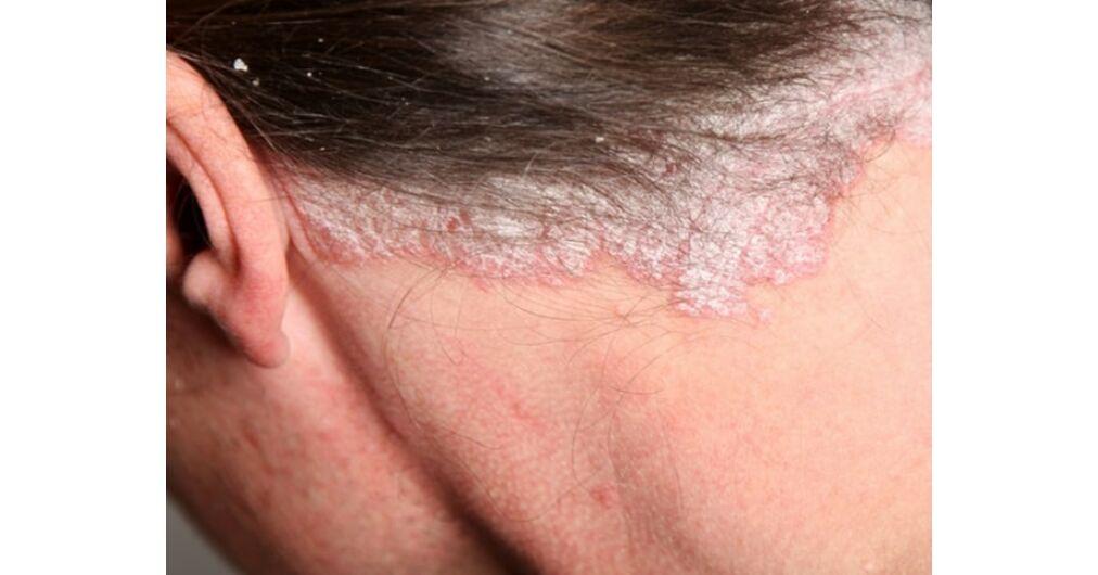 hogyan lehet megszabadulni a nyak pikkelysömörétől